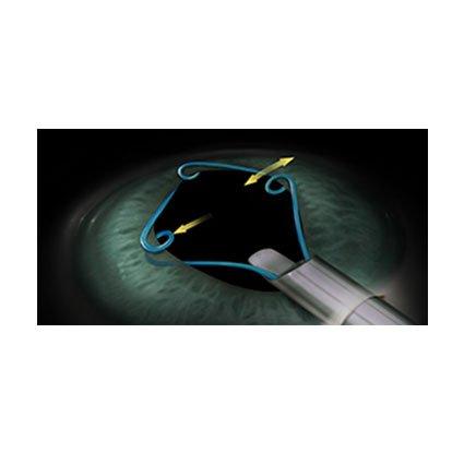 Desechables Catarata línea MST Microsurgical